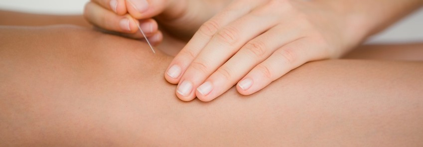 Akupunktur Cham